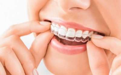 How To Care For and Use Your New Invisalign Clear Aligners